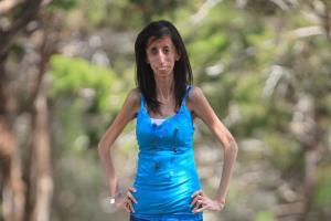 ugliest-woman